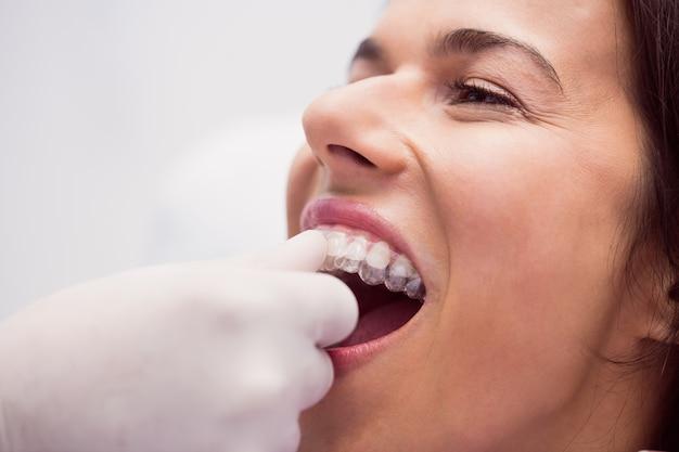 Dentista, ajudando o paciente do sexo feminino a usar aparelho