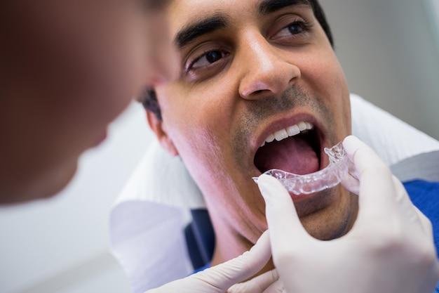 Dentista, ajudando um paciente a usar aparelho invisível