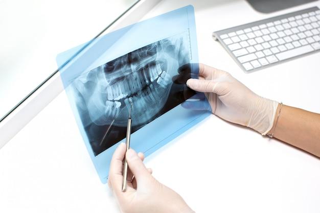Dentista examina foto de raio-x dos dentes