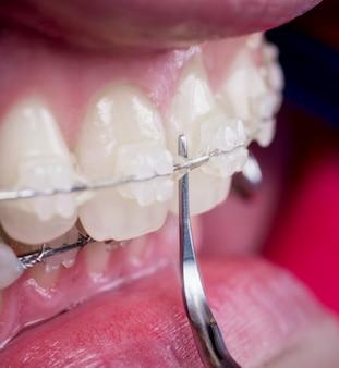 Dentista, limpeza dos dentes com suportes de cerâmica, usando a ferramenta dental no consultório odontológico.