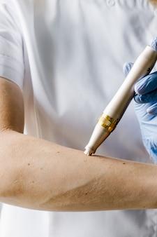 Dermapen dourado para mesoterapia nas mãos do cosmetologista com luvas azuis. produto de cosmetologia.