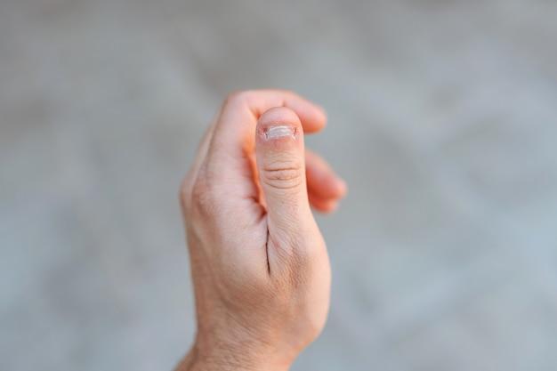 Detalhe de close-up de uma mão esquerda mostrando um polegar com uma condição de unha branca e mordida