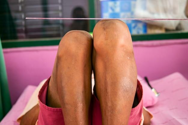 Discrepância do comprimento da perna (lld), tíbia deformidade e osso do fêmur