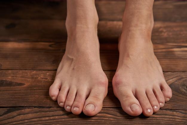 Doença de hallux valgus nas pernas femininas