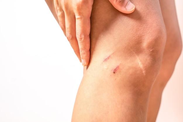 Dois riscos de ferida no joelho feminino com grande cicatriz closeup, saúde e medicina conceito