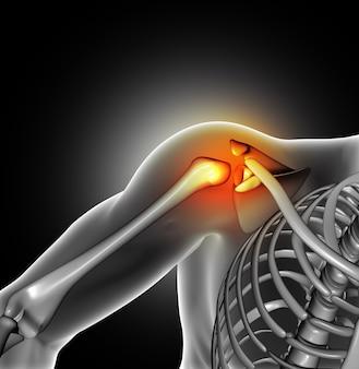 Dor na articulação do ombro