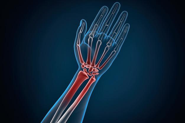 Dor no punho e mão humana causada por artrite