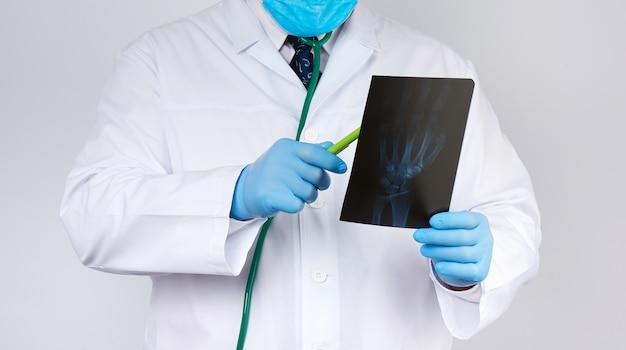 Doutor em um jaleco branco e luvas de látex azuis detém um raio-x de uma mão de homem