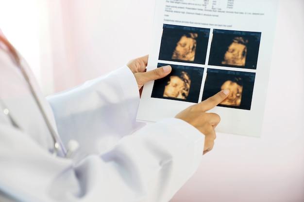 Doutor, olhar ultra, som, foto, em, hospitalar