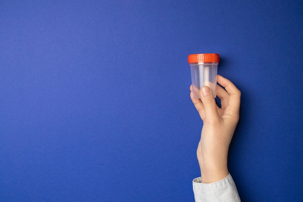 Doutor segurando o copo de amostra. exame médico para a urina no hospital.