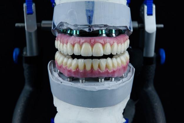 Duas próteses dentárias de cerâmica no articulador dentário