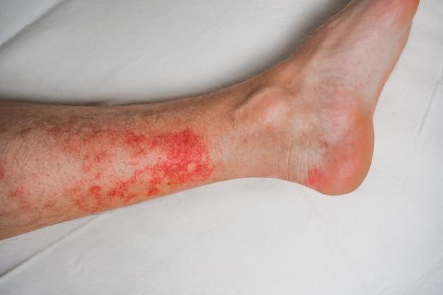 Eczema dermatose nas pernas, erupções e manchas vermelhas que coçam