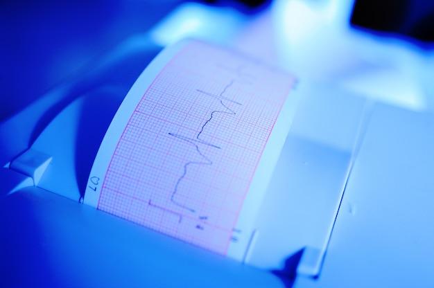 Eletrocardiograma em closeup de mãos de enfermeira
