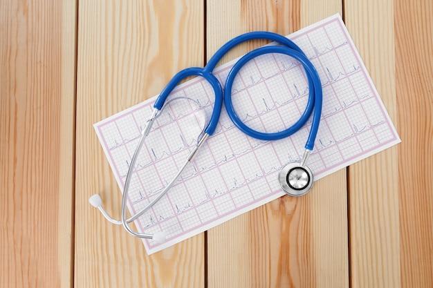 Eletrocardiograma em papel e estetoscópio na mesa de madeira