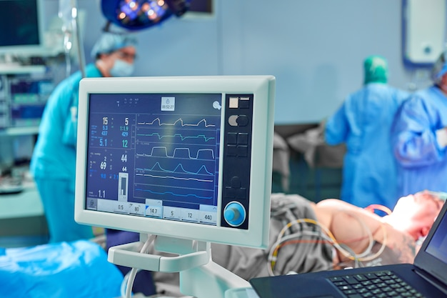 Eletrocardiograma na sala de emergência operacional da cirurgia do hospital, mostrando a freqüência cardíaca do paciente com a equipe de desfoque do fundo dos cirurgiões