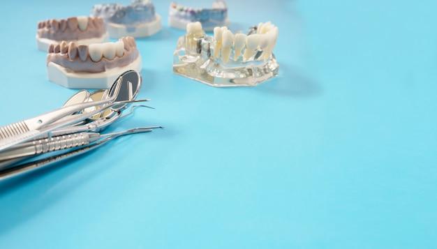 Equipamento de coroa e ponte e restauração de correção expressa de modelo.
