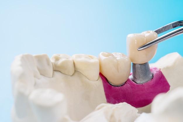 Equipamento de dentística para implantes de ponte e coroa dentária e modelo de restauração de fixação expressa.