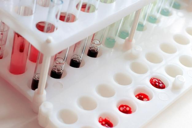 Equipamento médico. teste de sangue