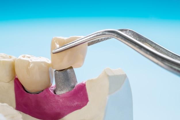 Equipamento para prótese dentária em close-up / implante ou prótese / coroa dentária e ponte de implante e restauração de reparo expresso modelo.