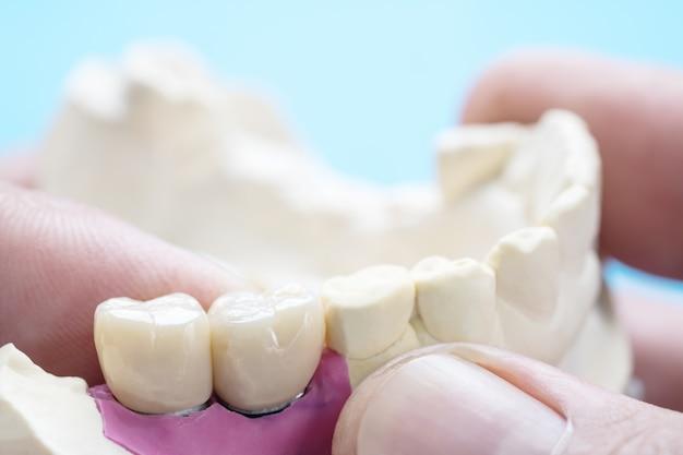 Equipamentos para prótese dentária em close-up / implante ou prótese / coroa dentária e ponte de implante e restauração de reparo expresso modelo.