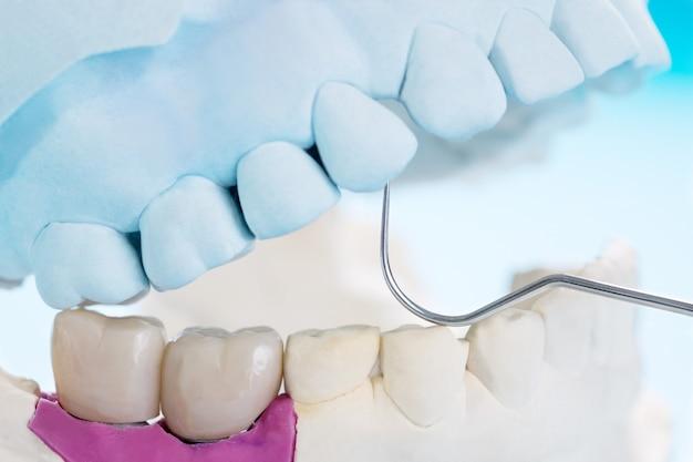 Equipamentos para prótese dentária em close-up / implante ou prótese / ponte dentária e implante de ponte e restauração de reparo expresso modelo.