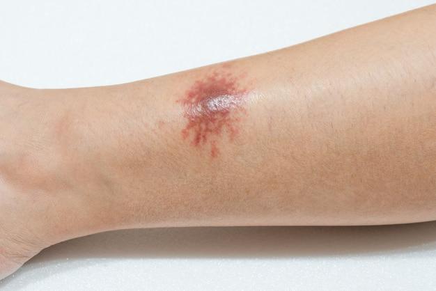 Erupção alérgica na perna da pele causada por picadas de insetos da areia da praia tópica