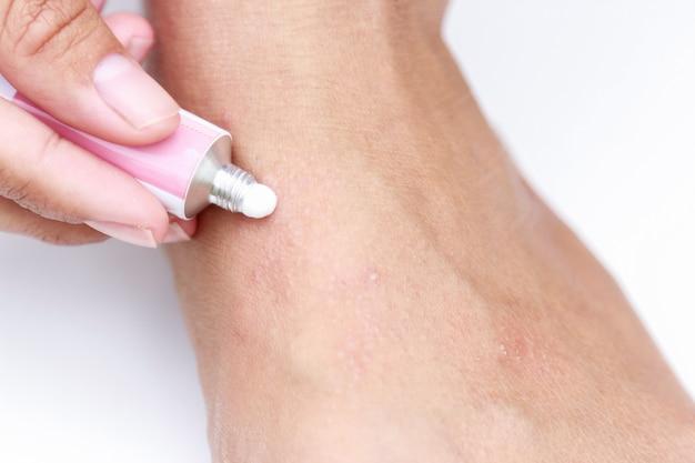 Erupção cutânea de suor a pé com creme para cura