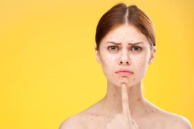 Erupção cutânea e inflamação do rosto, acne e varicela