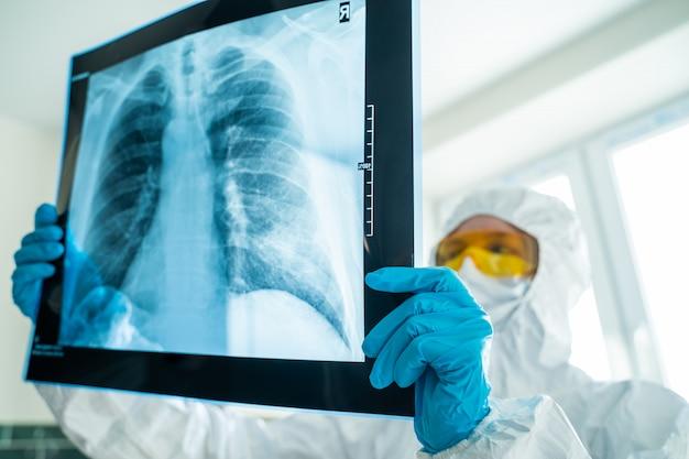 Especialista assistindo a imagem do peito no visualizador de filmes de raio-x