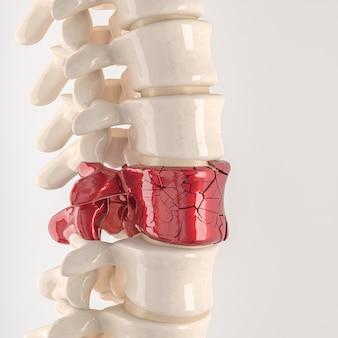 Espinha com vértebras quebradas. conceito de desconforto físico. 3d render