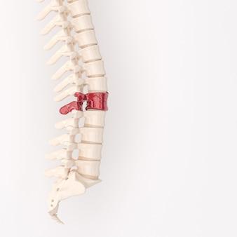Espinha dorsal com vértebras fragmentadas vermelhas. conceito de problema nas costas. renderização 3d.