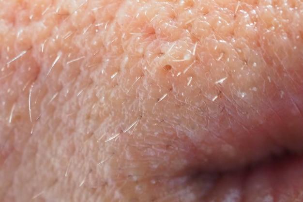 Espinha e acne na pele e na boca da cara, macro do zumbido. pele de poros oleosa.
