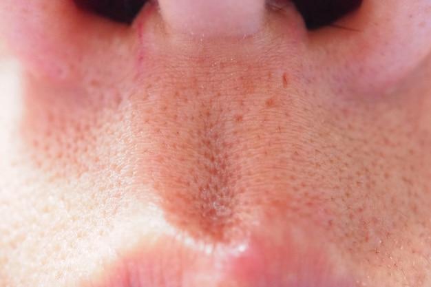 Espinha e acne na pele e no nariz da cara, macro do zumbido. pele de poros oleosa.