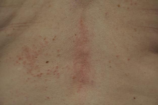 Espinhas de eczema nas costas