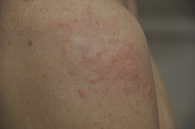 Espinhas de eczema no ombro