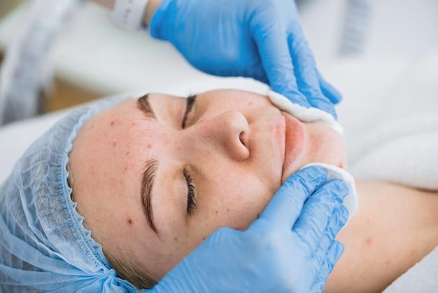 Esponja a aplicação da máscara no rosto com pele problemática.