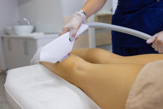 Esteticista, dando tratamento a laser de depilação para mulher na coxa.