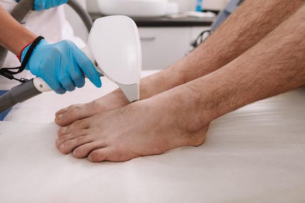 Esteticista, remoção de pêlos nos pés de um homem, usando a máquina de depilação a laser