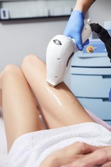 Esteticista, removendo, cabelo, jovem, mulher, perna, laser