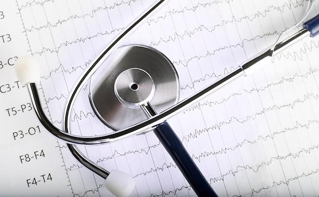 Estetoscópio azul no papel gráfico de ecg do eletrocardiograma. varredura de gráfico de coração de ecg isolada em branco. seguro de saúde e antecedentes médicos