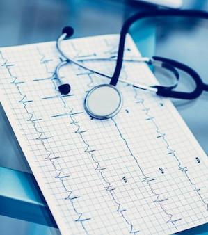 Estetoscópio e eletrocardiograma na mesa da terapeuta. a foto é um espaço em branco para o seu texto