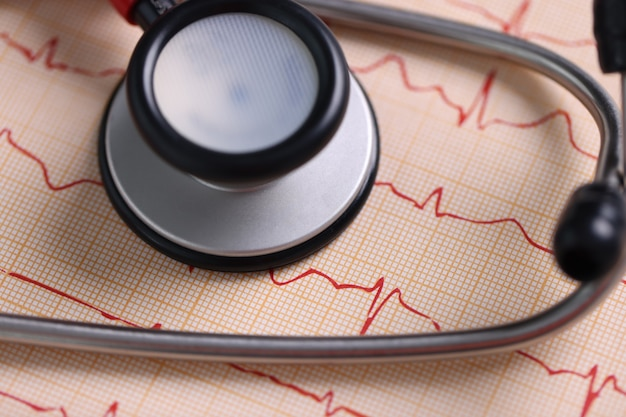 Estetoscópio médico e eletrocardiograma impresso na mesa. conceito de serviços de cardiologista