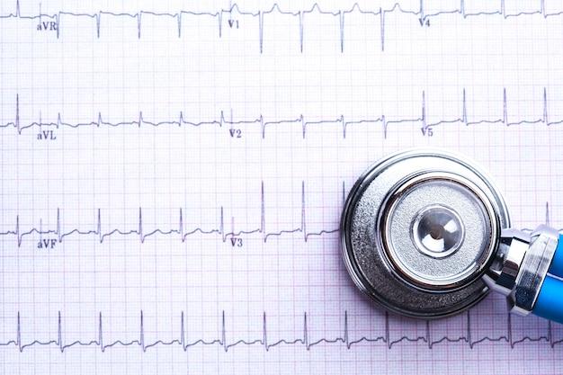 Estetoscópio na folha de eletrocardiograma