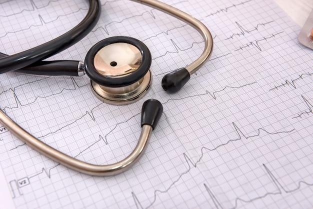 Estetoscópio no eletrocardiograma na mesa close-up