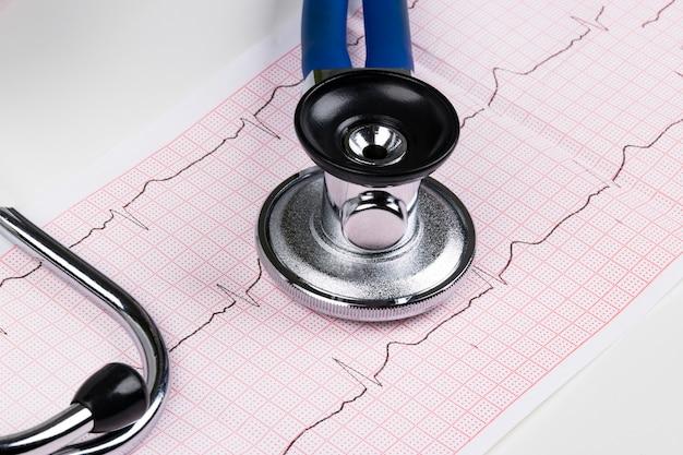 Estetoscópio no gráfico de eletrocardiograma (ecg). conceito de medicina. fundo de saúde