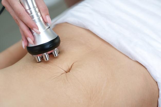 Estrias na pele após o parto e perda de peso. massagem de levantamento de rf na barriga de uma jovem. solução para celulite e perda de peso