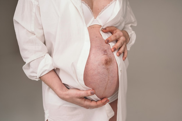Estrias no abdômen de uma mulher grávida. a menina está esperando um filho. jovem mãe grávida segurando a barriga