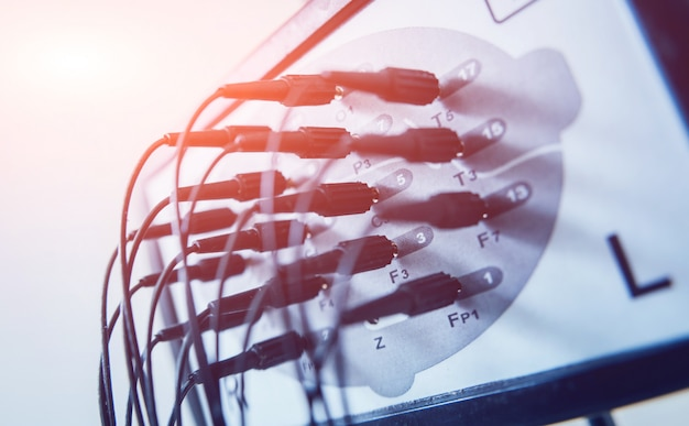 Euipment do encefalograma com eletrodos. no hospital