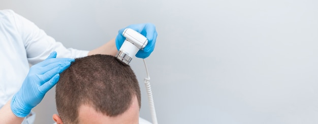 Exame com tricoscópio de cabelo, couro cabeludo e folículos capilares de um jovem