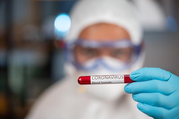 Exame de sangue de coronavírus no laboratório do hospital